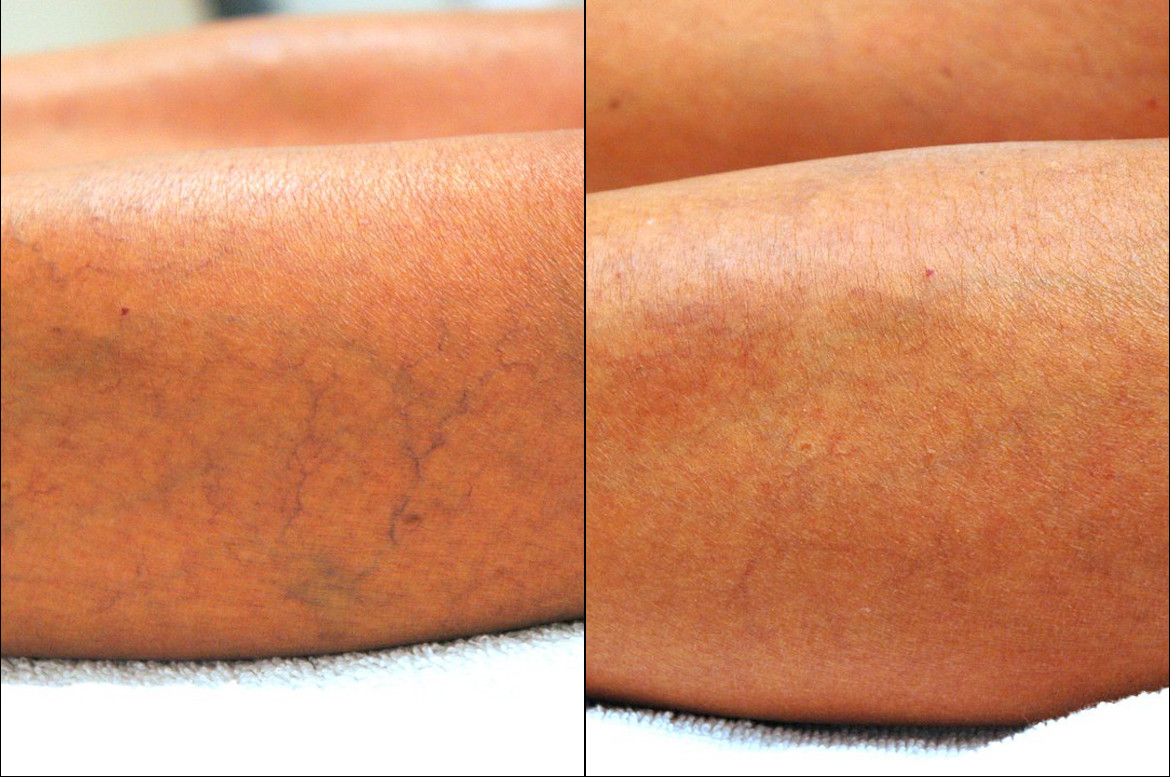 Spider Veins Treatments
